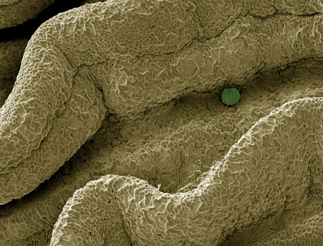 SEM of a fertilized human ovum in a fallopian tube, mag. 160x (at 8.3 x 11.7 in.) A fertilized egg passes through the fallopian tube before implantation in the uterine wall. (c) David Spears