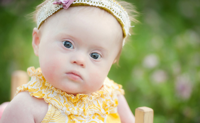 Baby girl with Down Syndrome. Photo credit - Julie Kulbago Photography. ©